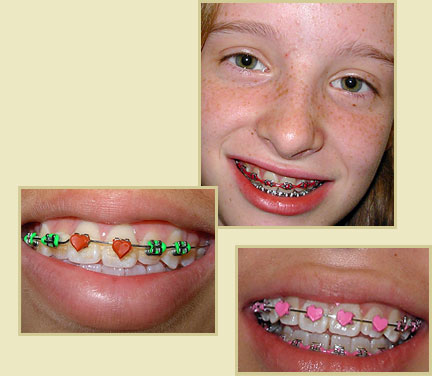 dentist, invisible braces, wisdom tooth surgery, teeth implant, dental clinic