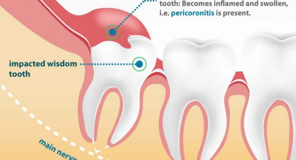 10 Reasons You Should Have Wisdom Tooth Surgery Before Its Too Late